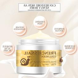 Snail <font><b>Face</b></font> Cream Acne Scar Removal cream